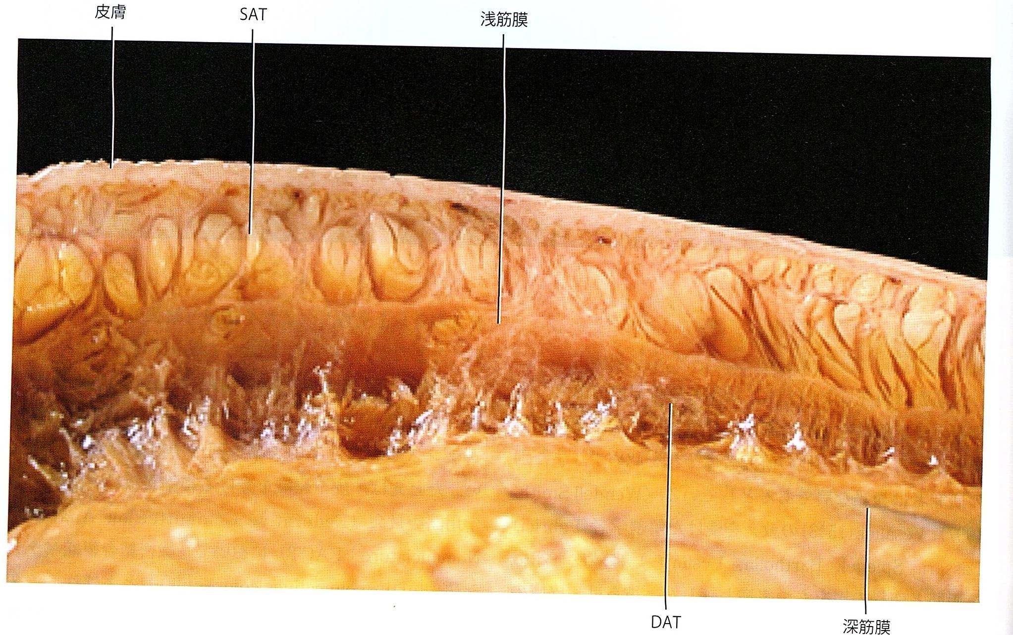 筋膜層.jpg